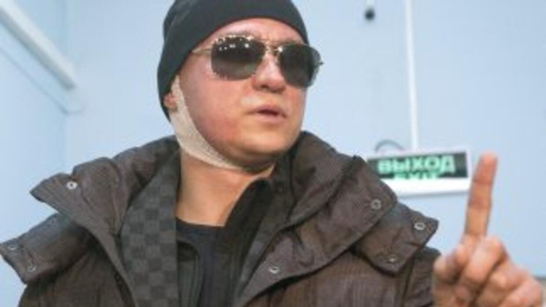 Serguéi Filin, que fue atacado el 17 de enero de 2013 por un desconocido...