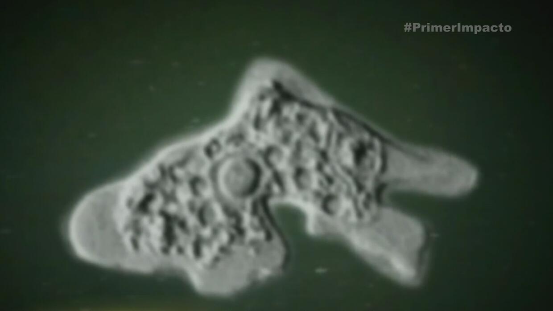 Bacteria come cerebro en aguas de Florida