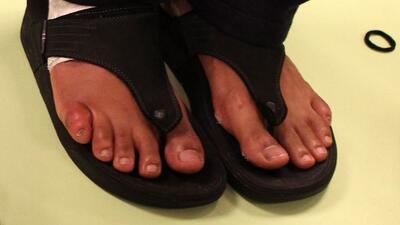 David Haye dijo que tenía el dedo pequeño del pie derecho roto desde hac...