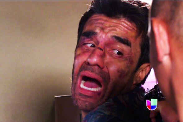 ¡No Johnny! Ojalá te salves de ese sufrimiento. No queremos perderte.