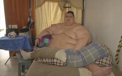 Mexicano que superó las 1,311 libras podrá ser operado tras perder el 30...