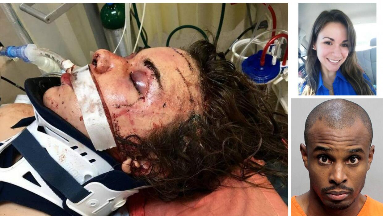 Joven de Miami abre los ojos tras brutal golpiza