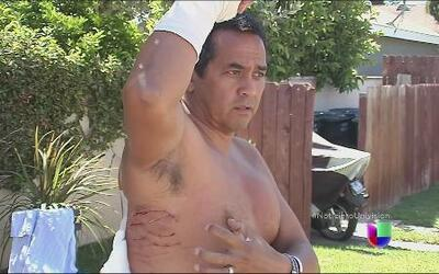 Un hombre hispano fue atacado por un tiburón y vivió para contarlo