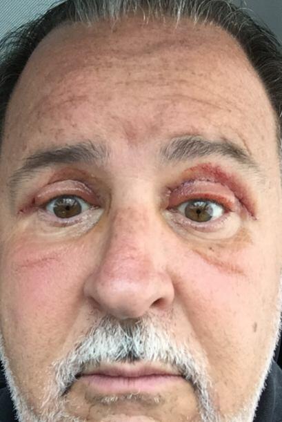 Para el cuarto día ya se notaba un poco más la desinflamación de los ojos.