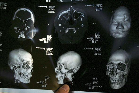 Tras una compleja cirugía, un equipo de médicos le realizó el transplant...