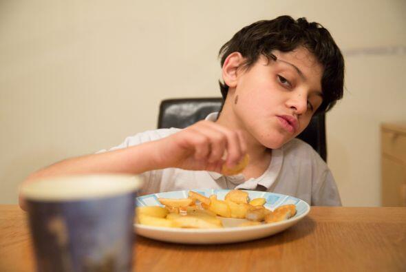 Este niño puede comer alimentos de manera normal, pero prefiere todo lo...