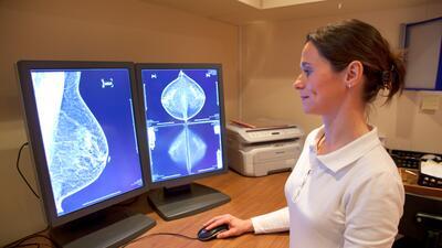 salud cancer seno