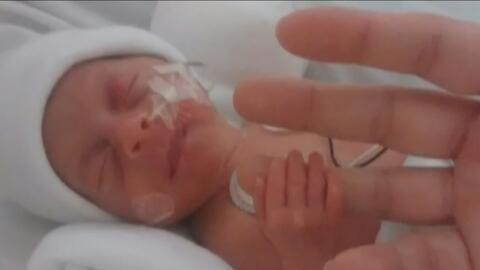 Con 19 días de diferencia nacieron unos gemelos en México