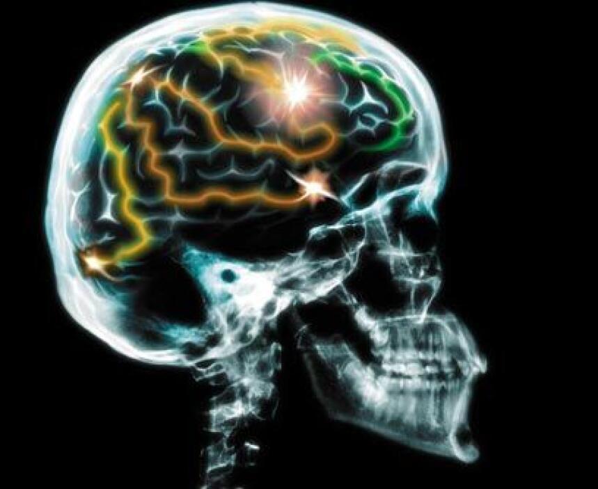 Cirujano de aumento de memoria. Entramos a la era del todo se puede. Aho...
