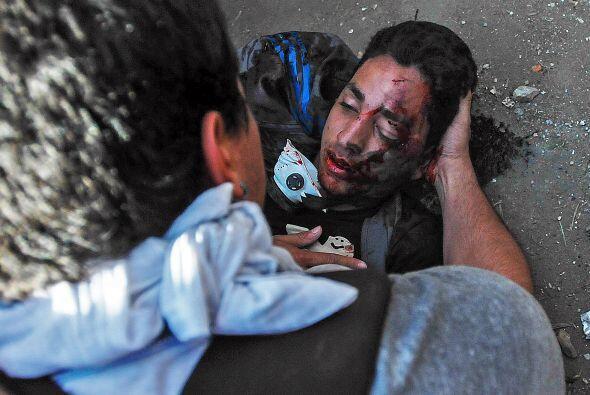 12 de febrero. El estudiante Bassil DaCosta cae abatido por disparos en...
