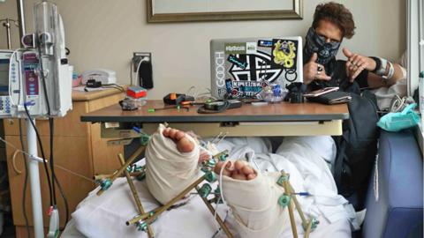 Anthony Booth Armer en la cama del hospital.