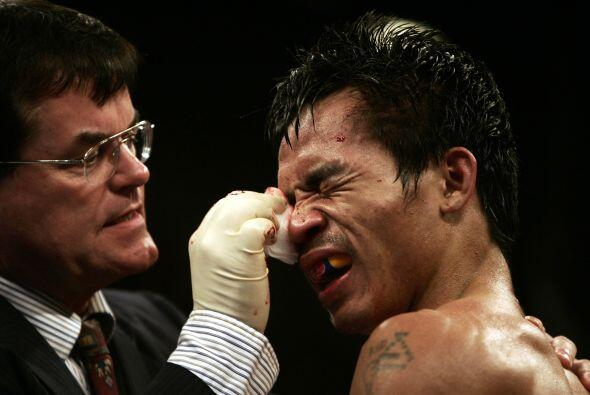 En el quinto episodio Manny Pacquiao recibió un cabezazo accident...