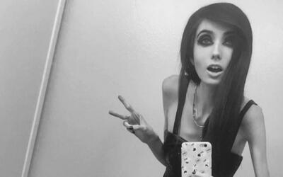 Acusan a youtuber de promover la anorexia