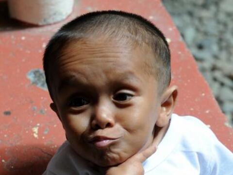 Junrey Balawing, un filipino de 59,9 centímetros de altura fue de...