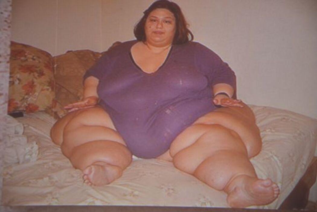 Hace 3 años esa era Mayra Rosales, un ser humano con 1,100 libras de pes...