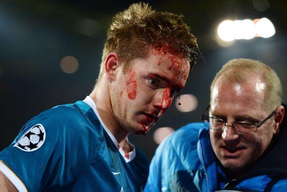 La sangre no paraba por el golpe recibido en la ceja izquierda de Huboca...