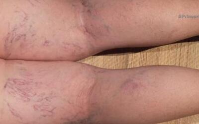 Tratamientos naturales para prevenir venas hinchadas y protuberantes