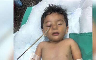 La milagrosa recuperación de un niño que se clavó una varilla de hierro...