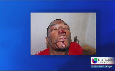 Denuncian presunta brutalidad policiaca