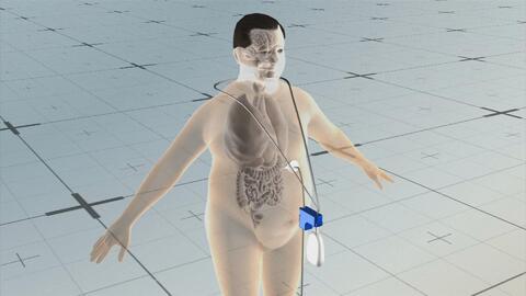 El polémico dispositivo contra la obesidad que usa una sonda para vaciar...