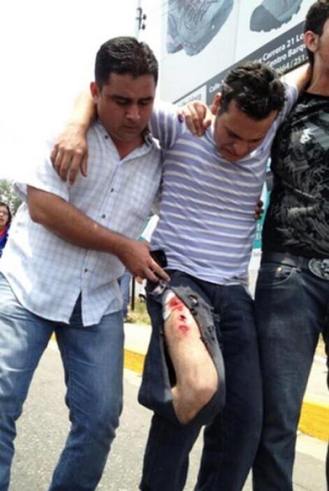 Uno de los heridos el martes es asistido y llevado a un centro asistenci...