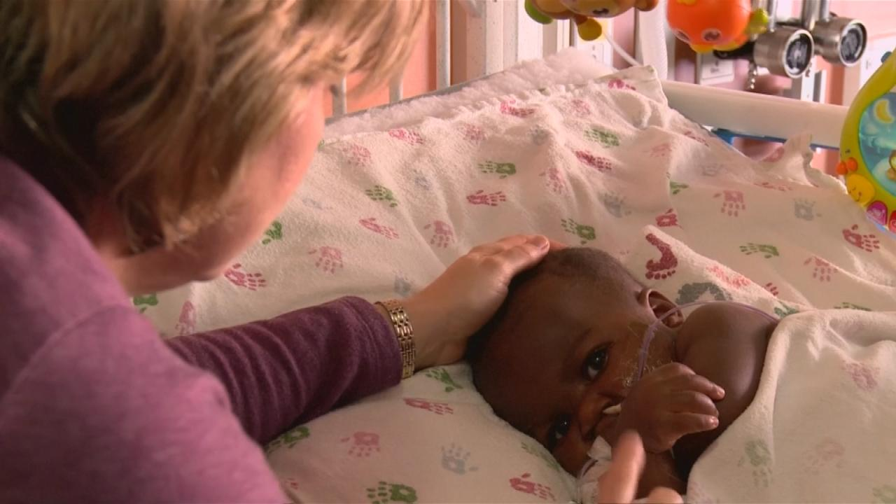 Separan con éxito en Chicago a una bebé de su gemelo parásito ...