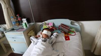 Niño le extirparon los ojos en China.