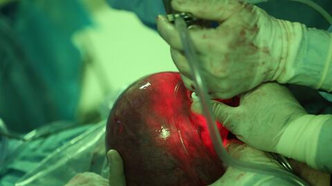 El fetoscopio tiene una cámara y una luz que ilumina por completo...