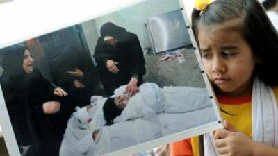 Una niña sostiene una fotografía del entierro de una víctima en el confl...