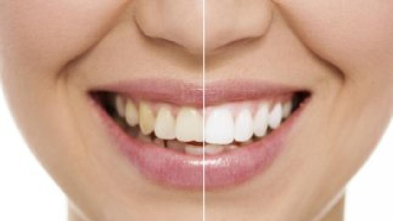 Si buscas tener dientes más blancos, existen diversos productos que pued...