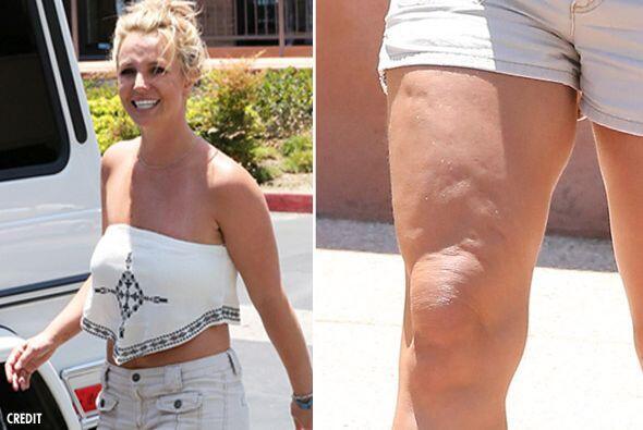 ¡Qué espanto! Britney Spears fue captada en las calles luciendo unas pie...