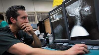 La osteoporosis, enfermedad que causa el debilitamiento de los huesos, s...