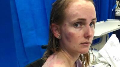 Así quedó esta mujer que salvó a su bebé cuando quedaron atrapadas en medio de un intenso granizo