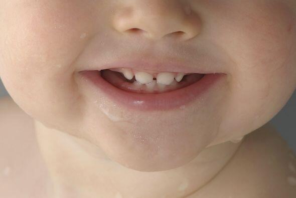 ¿Siempre tienen molestias? Los expertos discrepan sobre si la dentición...