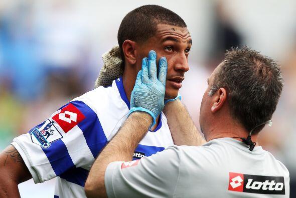No estamos seguros si a Jay Bothroyd del Queens Park Rangers le revisan...