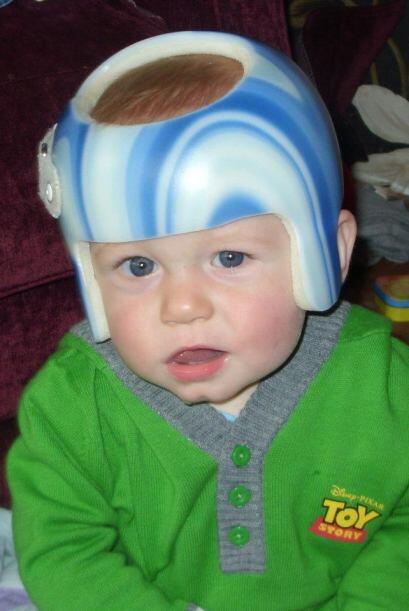Lo que Coby, su hijo, sufría era plagiocefalia, un trastorno cara...