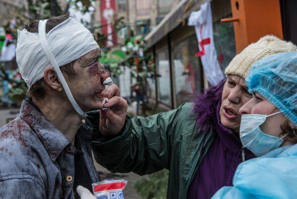 Bulatov fue torturado y brutalmente golpeado, y con parte de la oreja de...