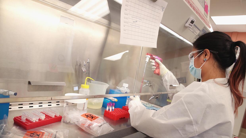 Las pruebas de detección del virus están a cargo de los CDC y algunos de...