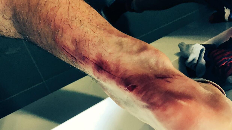 Resultado de imagen para pizarro herida