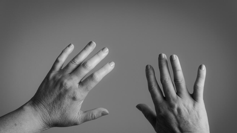 La esclerodermia sistémica ocurre cuando el sistema inmunitario ataca po...