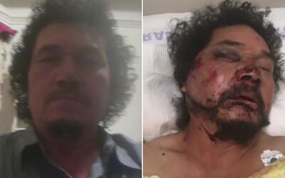 Pedro Reyes, de 54 años, fue atacado en el sur de Los Ánge...