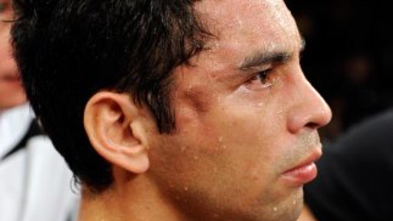 Fernando Montiel sufrió presumiblemente una fractura en la zona lateral...