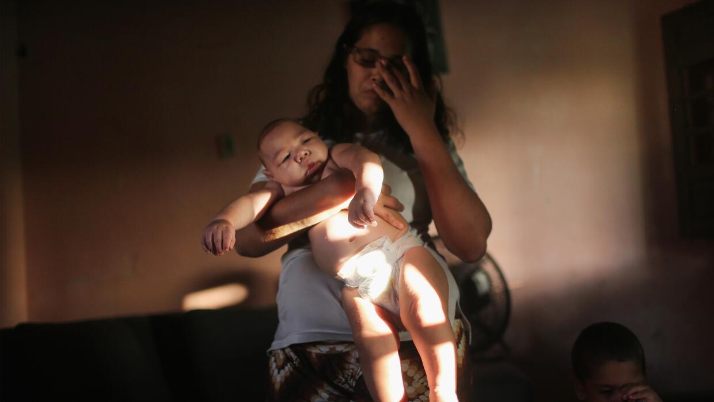 Zika/salud/microcefalia