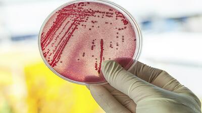 ¿Nuevo brote bacteriano en el Hospital de Carolina?