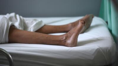 El SGB inflama los nervios y genera debilidad muscular y parálisis tempo...
