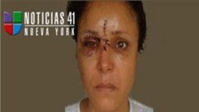 Afroamericanos atacaron a latina en tren del Bronx, le cortaron la cara...