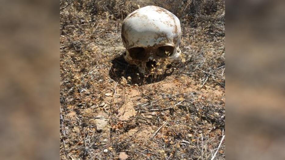 Encuentran restos de un inmigrante en la frontera de Arizona Craneo1.jpg