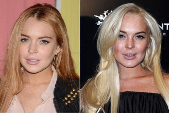 Las adicciones terminaron con el bello rostro de Lindsay Lohan, la antig...