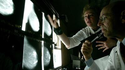 Ofrecerán mamografías gratis como parte de la campaña de concientización del cáncer de mama