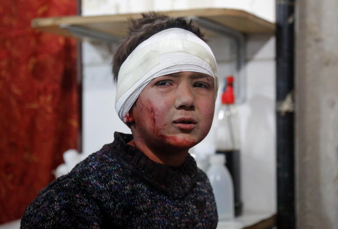 5 de marzo. Un niño sirio herido después de un ataque aéreo de Asad en z...